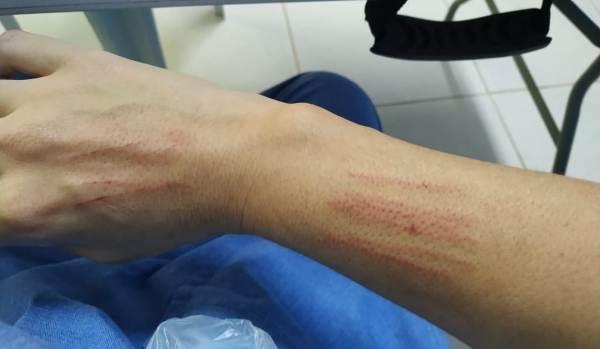 Técnica de enfermagem é agredida por colega de trabalho dentro do HGL
