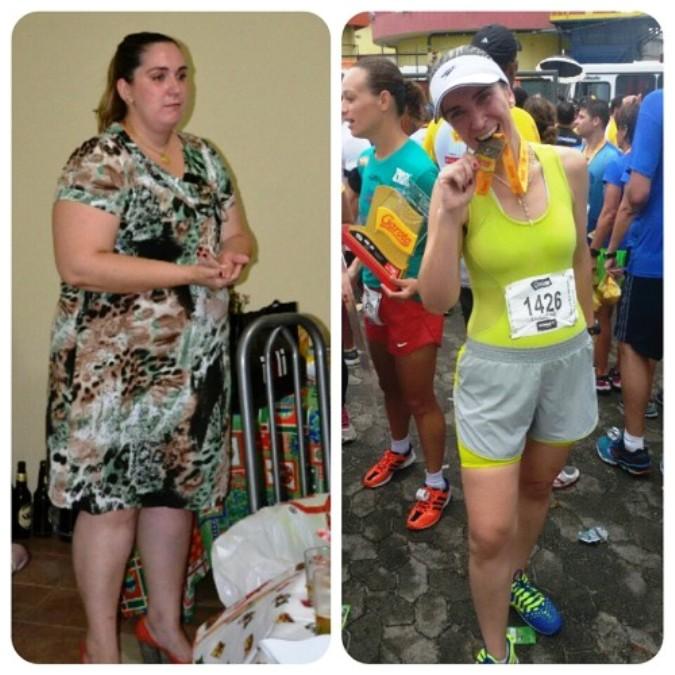Ela perdeu 64 quilos e afirma: não tem mágica na cirurgia bariátrica